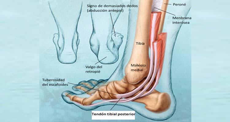 Tendinitis Tibial Aprende Cómo Tratar Y Prevenir Esta Lesión
